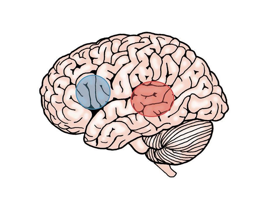 Bilde som illustrerer språkområdene i hjernen